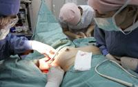 Sentencia condenatoria Cirujano Estetico por daños causados reducción pechos
