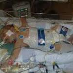 Investigacion Negligencia Medica Muerte Menor