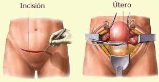 histerectomia-negligencia-medica