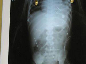 aguja abdomen negligencia medica vazquezabogados.es