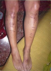 quemaduras laser depilacion piernas vazquezabogados.es